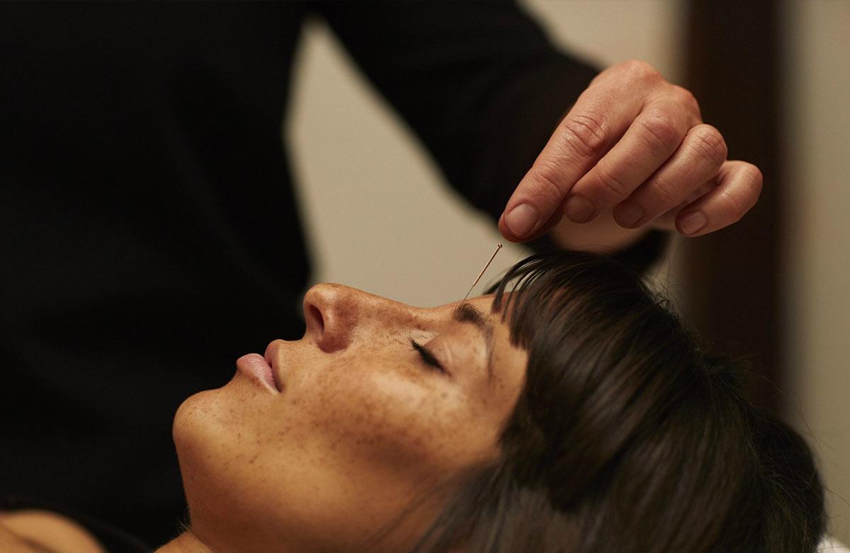 Fødselsmodnings akupunktur - Signes Jordemoder og Scanningsklinik