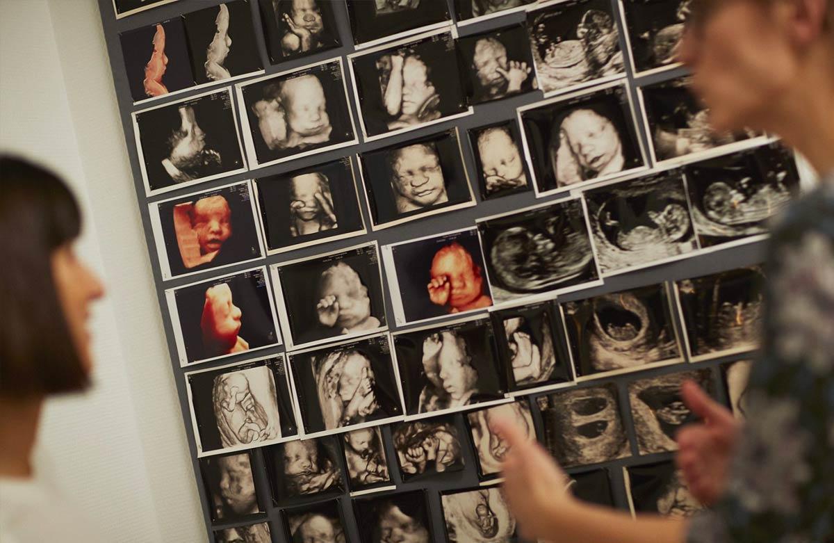 Scannings billeder - Signes Scanningsklinik - Aarhus